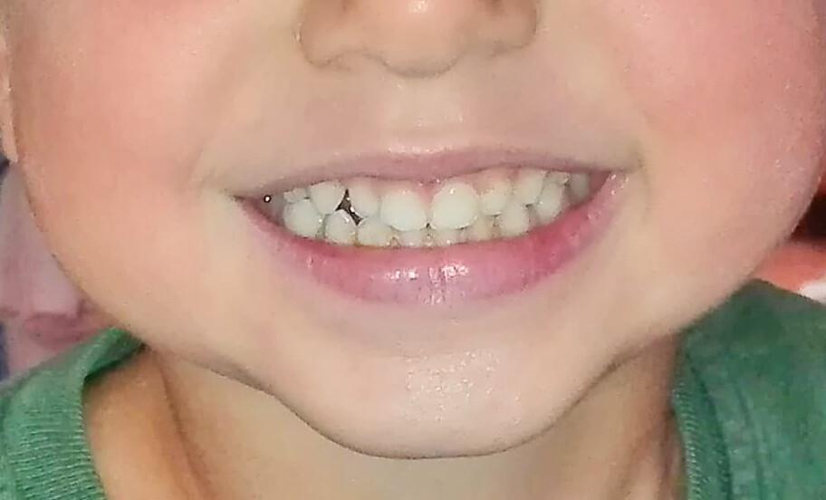 igiene dentale bambini